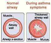 Cross-section of normal airways and affected by asthma