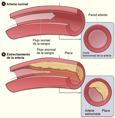 Plaque Buildup in an Artery - Atherosclerosis
