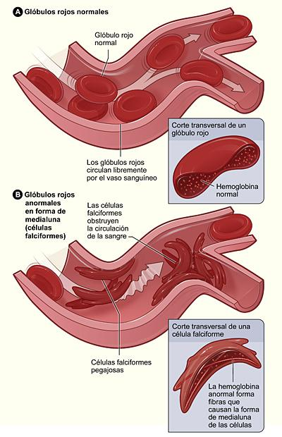 La enfermedad de células falciformes | National Heart, Lung, and ...