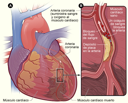 Heart With Muscle Damage and a Blocked Artery - Spanish