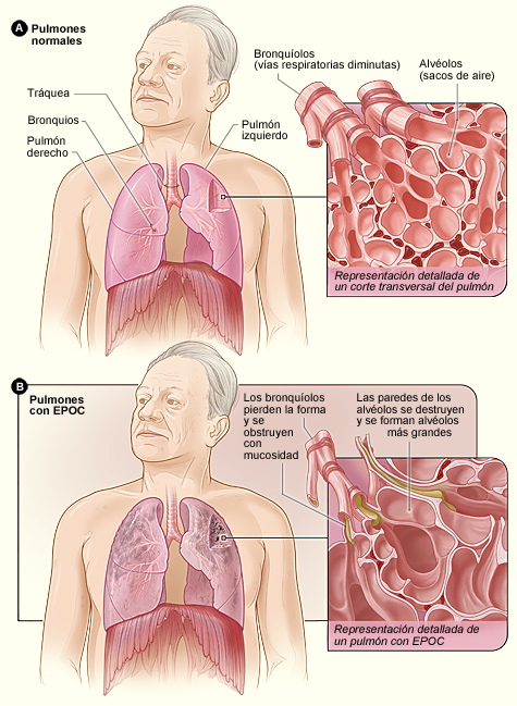 Normal Lungs and Lungs With COPD - Spanish