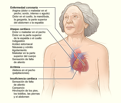 Heart Disease Signs and Symptoms - Spanish