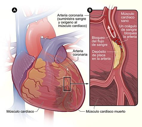 Las enfermedades del corazón en las mujeres | National Heart, Lung ...