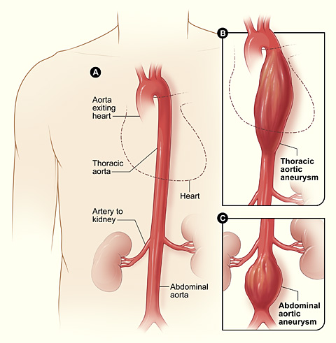 Aneurysm | National Heart, Lung, and Blood Institute (NHLBI)