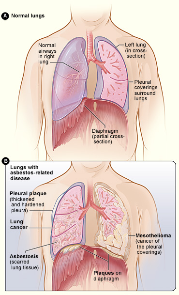 Asbestos-Related Lung Diseases