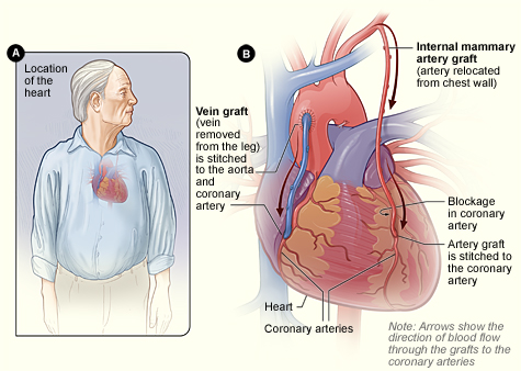 Coronary Artery Bypass Grafting National Heart Lung And Blood