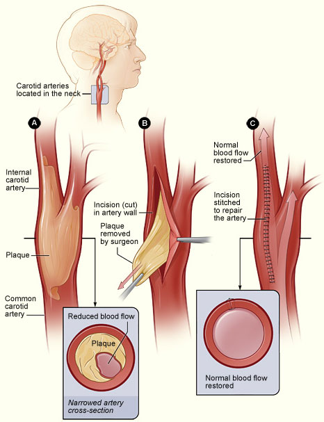 Carotid Artery Disease National Heart Lung And Blood Institute