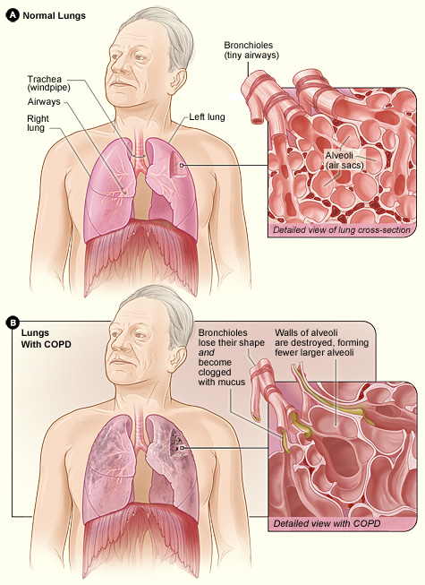 Normal Lungs and Lungs With COPD