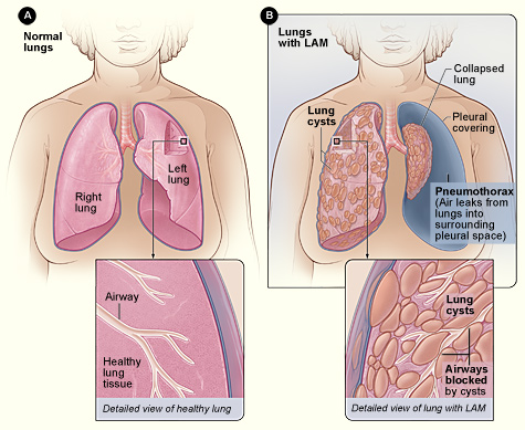 Normal Lungs and Lungs With LAM