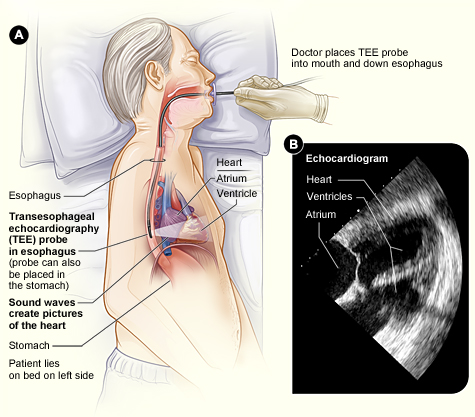 Transesophageal Echocardiography