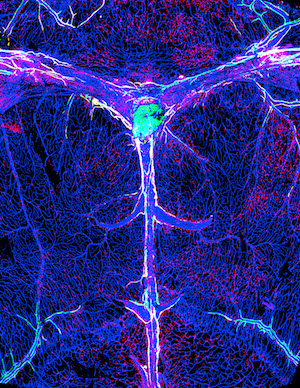 Lymphatic vessels in the postnatal brain meninges