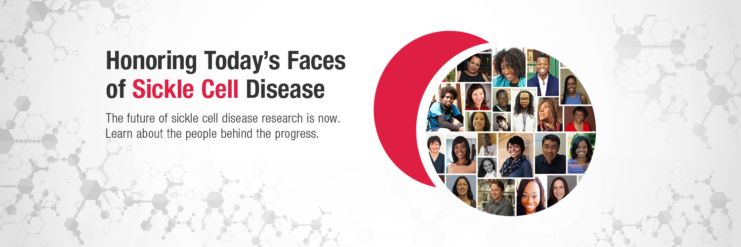 "Promotional banner promoting ""Today's Faces of Sickle Cell"" and this page"