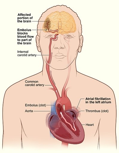 An illustration that shows how a stroke can occur during atrial fibrillation.