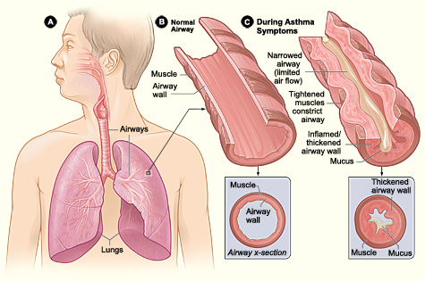 Asthma diagram of the lungs.