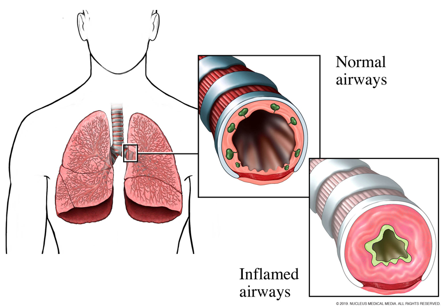 Airway narrowing in an asthma attack.