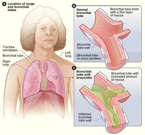 Bronchitis diagram
