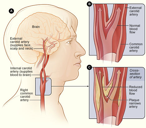 Carotid artery disease diagram.