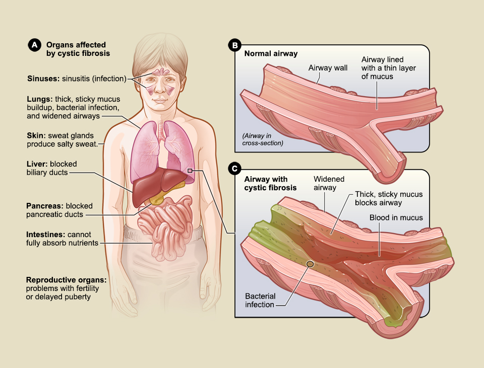 How cystic fibrosis affects the body.