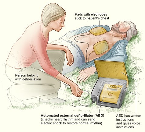 Image of an automated external defibrillator in use.