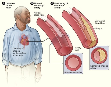 Obstructive coronary artery disease.