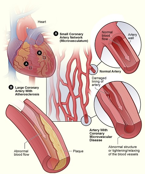 Ischemic Heart Disease National Heart Lung And Blood