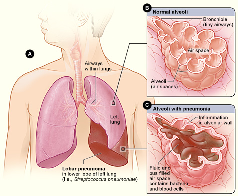 Pneumonia | National Heart, Lung, and Blood Institute (NHLBI)