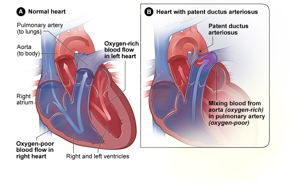 Congenital Heart Defects | National Heart, Lung, and Blood Institute ...