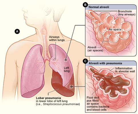 Pneumonia Nhlbi Nih