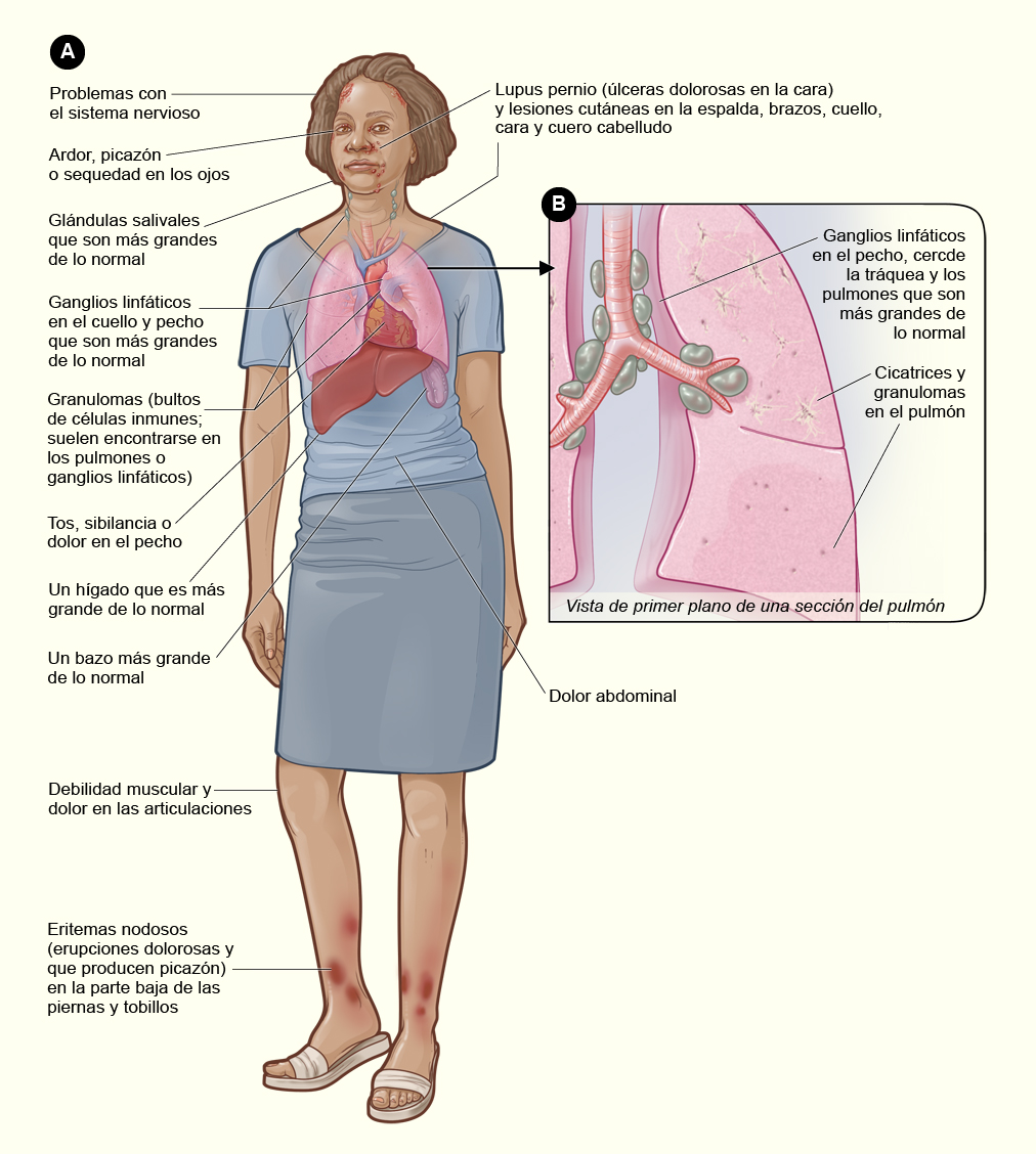 Sarcoidosis | National Heart, Lung, and Blood Institute (NHLBI)