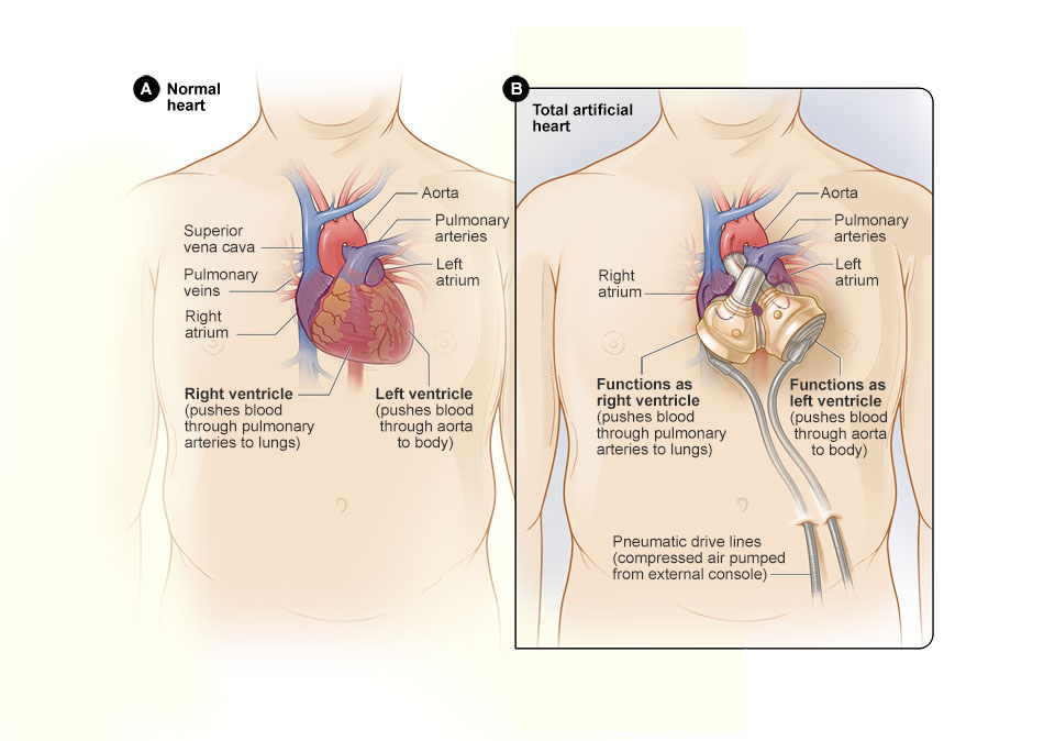 Total Artificial Heart | National Heart, Lung, and Blood Institute ...