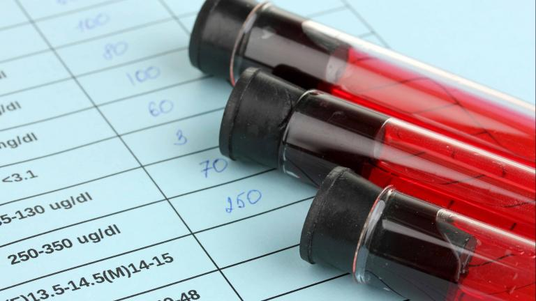 Blood vials laid on top of a medical chart.