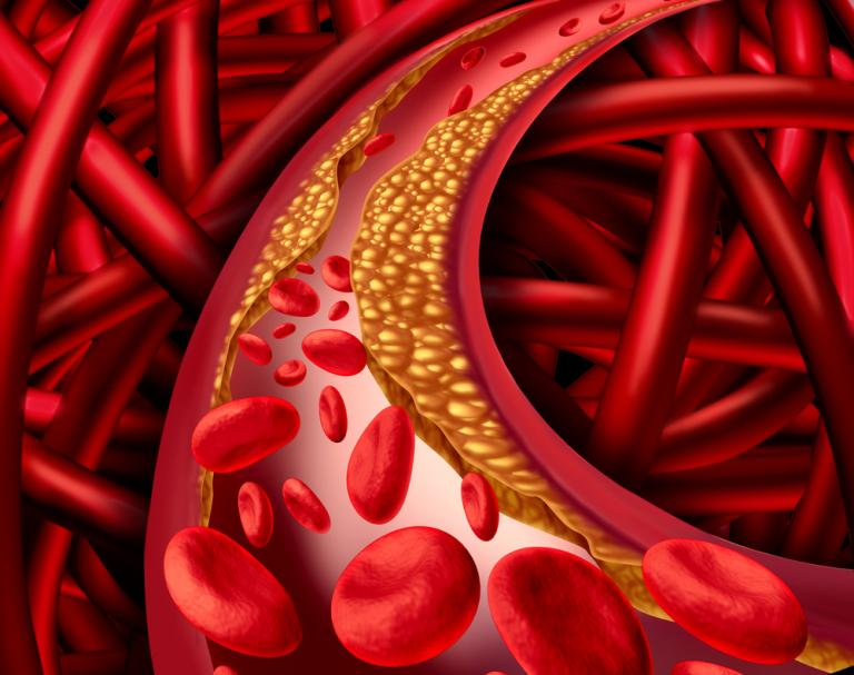 Illustration of human artery that is blocked by plaque buildup of cholesterol