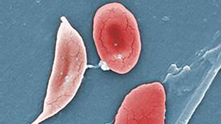 Microscopic view of sickle, and normal blood cells.