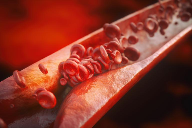 3D rendering of plaque in arteries
