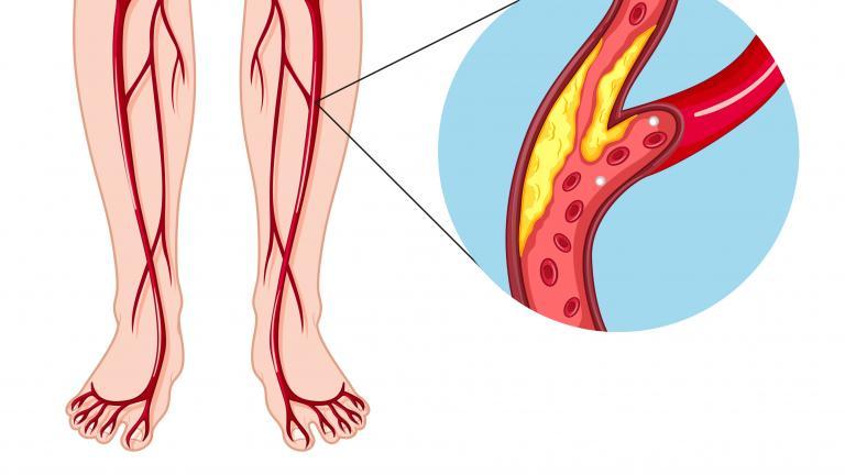 diagram illustration of peripheral arterial disease