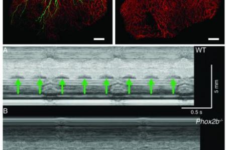 Whole-mount and ultrasound analysis of mutants lacking autonomic nerves