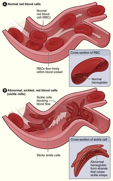 An image that shows the difference between a normal red blood cell verses  a sickle cell with abnormal (sickle) hemoglobin