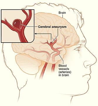 The illustration shows a typical location of a brain aneurysm in the arteries that supply blood to the brain. The inset image shows a closeup view of the sac-like aneurysm.