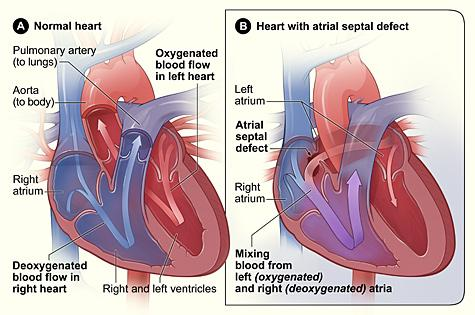 Figure A shows the structure and blood flow inside a normal heart. Figure B shows a heart with an atrial septal defect. The hole allows oxygen-rich blood from the left atrium to mix with oxygen-poor blood from the right atrium.