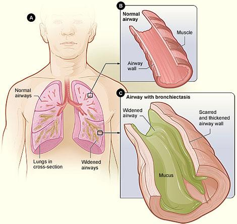 Figure A shows a cross-section of the lungs with normal airways and with widened airways. Figure B shows a cross-section of a normal airway. Figure C shows a cross-section of an airway with bronchiectasis.