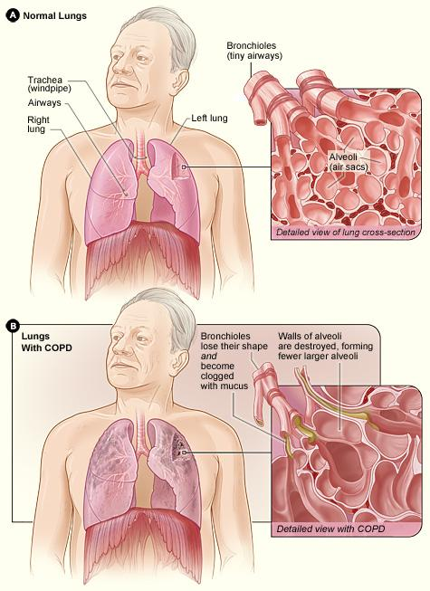 Figure A shows the location of the lungs and airways in the body. The inset image shows a detailed cross-section of the bronchioles and alveoli. Figure B shows lungs damaged by COPD. The inset image shows a detailed cross-section of the damaged bronchioles and alveolar walls.