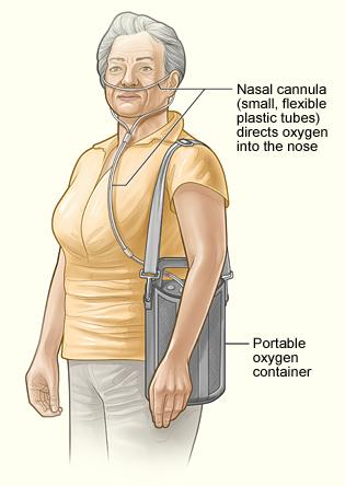 The image shows how a nasal cannula and portable oxygen container are attached to a patient.