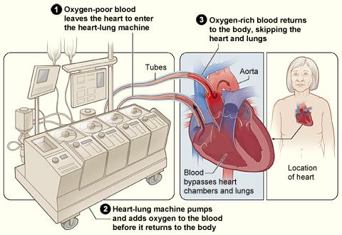 The image shows how a heart-lung bypass machine works during surgery.
