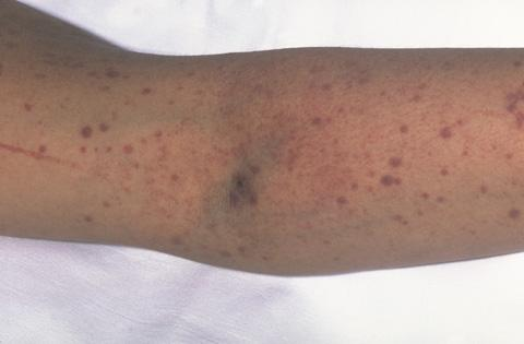 The photograph shows purpura (bruises) and petechiae (red and purple dots) on the skin.