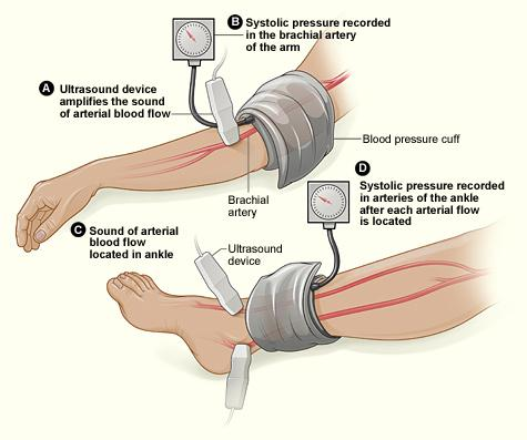 The illustration shows the ankle-brachial index test. The test compares blood pressure in the ankle to blood pressure in the arm. As the blood pressure cuff deflates, the blood pressure in the arteries is recorded.