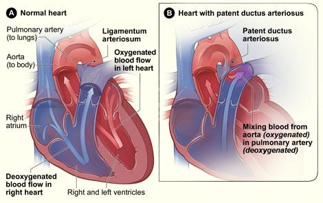Figure A shows the interior of a normal heart and normal blood flow. Figure B shows a heart with patent ductus arteriosus. The defect connects the aorta with the pulmonary artery. This allows oxygen-rich blood from the aorta to mix with oxygen-poor blood in the pulmonary artery.