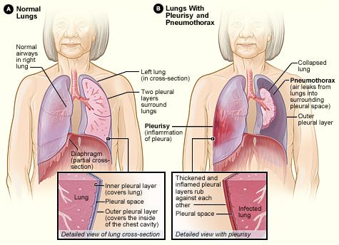 Figure A shows the location of the lungs, airways, pleura, and diaphragm (a muscle that helps you breathe). The inset image shows a detailed view of the two pleural layers and pleural space. Figure B shows lungs with pleurisy and a pneumothorax. The inset image shows a detailed view of an infected lung with thickened and inflamed pleural layers.