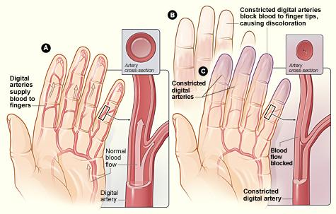 Figure A shows arteries in the fingers (digital arteries) with normal blood flow. The inset image shows a cross-section of a digital artery. Figure B shows fingertips that have turned white due to blocked blood flow. Figure C shows narrowed digital arteries, causing blocked blood flow and blue fingertips. The inset image shows a cross-section of a narrowed digital artery.