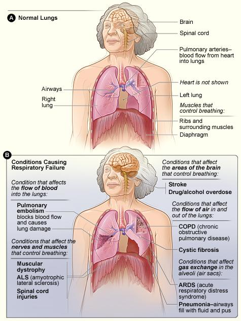 Figure A shows the location of the lungs, airways, diaphragm, rib cage, pulmonary arteries, brain, and spinal cord in the body. Figure B shows the major conditions that cause respiratory failure.