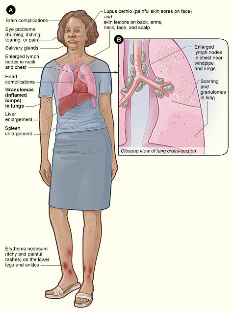 The illustration shows the major signs and symptoms of sarcoidosis and the organs involved.